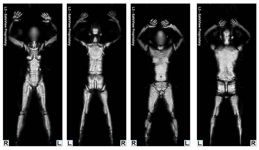 The results of a body scanner, similar to the types people go through at the airport. Even the most intense X-rays one receives are only equivalent to seconds of the dose one would get while flying. Large doses would pose extreme dangers to humans, or potentially any living creature.